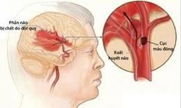 Chấn thương sọ não có thể làm tăng nguy cơ đột quỵ