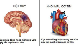 Tăng nguy cơ tim mạch ở người bệnh ung thư dùng liệu pháp nội tiết