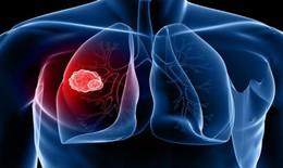 Thuốc mới trị ung thư phổi liên quan đến một số gen nhất định