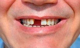 Mất răng làm tăng nguy cơ sa sút trí tuệ