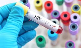 Nhiễm HIV làm tăng nguy cơ mắc COVID-19 nghiêm trọng: WHO cảnh báo