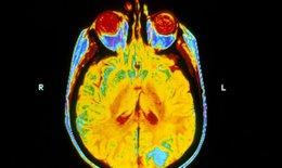 Xạ trị não không có tác dụng đối với bệnh nhân ung thư phổi di căn