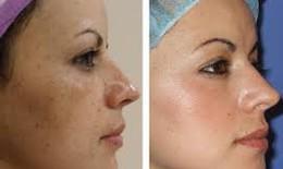 Là phụ nữ nên biết tất tần tật về nám da