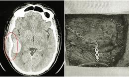 Xuyên đêm cấp cứu ca lún xương sọ, chảy máu não vì đá bóng