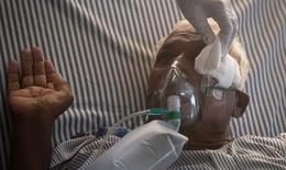 """Đại dịch """"nấm đen"""" hậu COVID-19 ở Ấn Độ có nguy cơ lây lan sang các quốc gia khác?"""