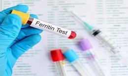 Chẩn đoán thiếu sắt và quá tải sắt qua nồng độ ferritin huyết thanh