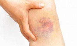 10 nguyên nhân làm bầm tím da