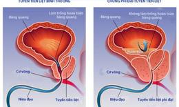 Thuốc điều trị phì đại lành tính tuyến tiền liệt có liên quan với suy tim