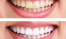 Cảnh báo: Có thể bị ung thư lưỡi, ung thư vòm họng khi tẩy trắng răng bằng thuốc tại nhà