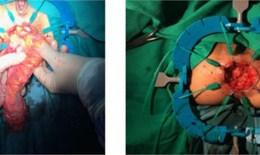 Mới: Bệnh nhân ung thư trực tràng không phải mang hậu môn nhân tạo sau mổ