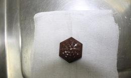 """Sử dụng đá """"Nano chữa bách bệnh"""" khiến nữ bệnh nhân nhập viện"""