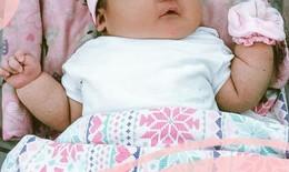 Bác sĩ sản khoa khuyến cáo: Thai nhi quá nặng cân- mối lo cho cả mẹ và bé