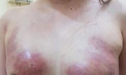 Kinh hoàng: bơm mỡ nhân tạo cô gái phải cắt bỏ ngực hoại tử, lấy ra 400 ml dịch mủ