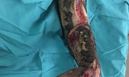Bệnh nhân sưởi ấm bị bỏng thương tâm phải cắt bỏ 2/3 cánh tay