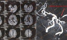 Cứu thành công trường hợp đột quỵ nhồi máu não nặng liệt nửa người phải