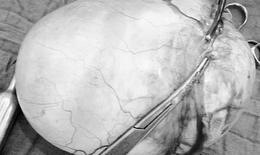 Phẫu thuật thành công khối u nang buồng trứng nặng 3kg