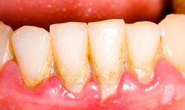 Cảnh báo:  Viêm nha chu có thể gây rụng răng