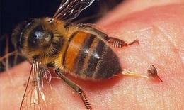 Hi hữu: Viêm giác mạc do ong đốt