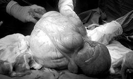 5 giờ phẫu thuật thành công khối u xơ tử cung khủng nặng 6,3 kg