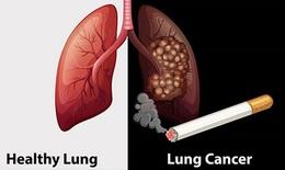 SOS: Thêm 26.000 người Việt mắc ung thư phổi năm 2020, 90% đều hút thuốc lá