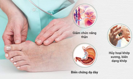 """7 cách """"chung sống hòa bình"""" với bệnh gout"""