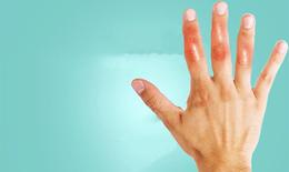 7 giải pháp hiệu quả giúp ổn định, hạn chế tái phát bệnh gout