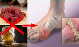 Sai lầm thường gặp khiến bệnh gout trầm trọng hơn