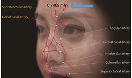 Nối mạch máu siêu nhỏ 0,7mm cứu người phụ nữ bị lột toàn bộ da dầu và nửa mặt