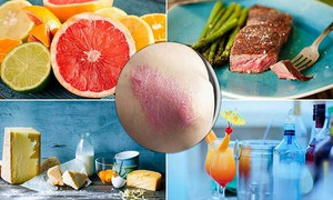 Những thực phẩm nên ăn và nên tránh khi bị vảy nến