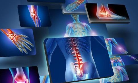 Trị viêm khớp dạng thấp bằng y học cổ truyền