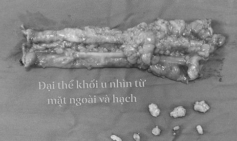 Đau bụng kéo dài, đại tiện khó có thể do ung thư  đại tràng