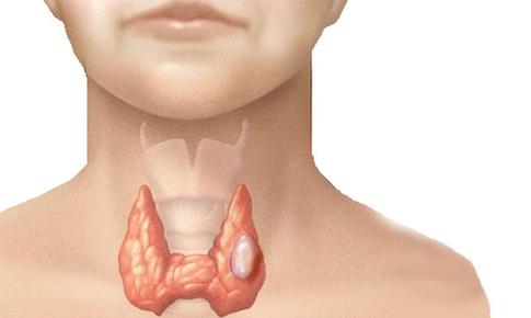 Không tái khám sau phẫu thuật u tuyến giáp, bệnh thêm trầm trọng
