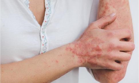 Bệnh vảy nến và những lo ngại trong đại dịch COVID-19