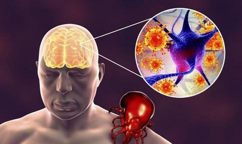 Phê duyệt vaccine ngừa viêm não do bọ ve gây ra