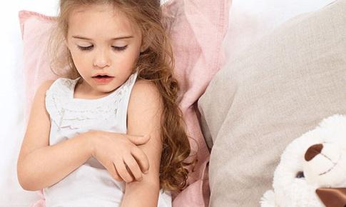 Ngừa bệnh chàm nặng hơn ở trẻ, hãy chú ý 7 việc