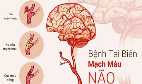 Mắc COVID-19 và nguy cơ đột quỵ não cấp
