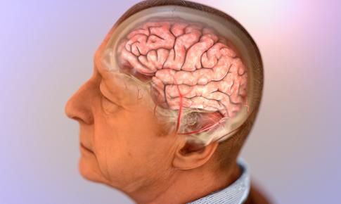 Liệu pháp mới phòng ngừa bệnh Alzheimer