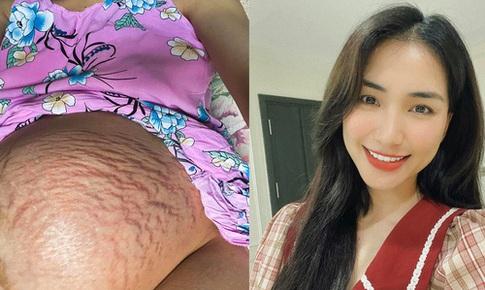 Chống rạn da từ khi nào để tránh 'họa' như Hòa Minzy?