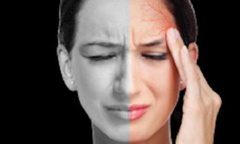 Thuốc trị đau nửa đầu cấp tính dạng xịt mũi