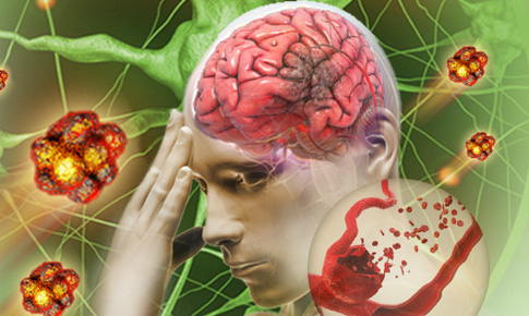 Đột quỵ hiểu đúng để phòng ngừa và điều trị hiệu quả