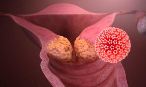 Ung thư cổ tử cung - Những điều cần lưu ý