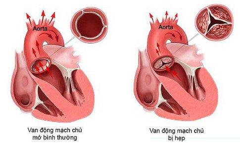 Phòng ngừa bệnh lý động mạch chủ- Nguy cơ tử vong cao