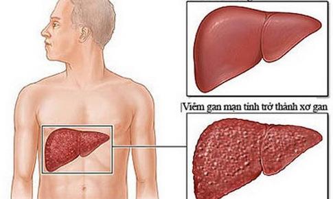Bài thuốc trị viêm gan mạn