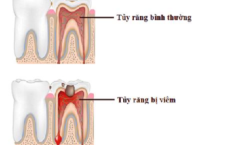 Viêm tủy răng do đâu?