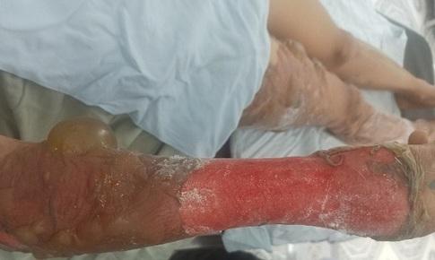 Cấp cứu kịp thời bệnh nhân bỏng nước sôi
