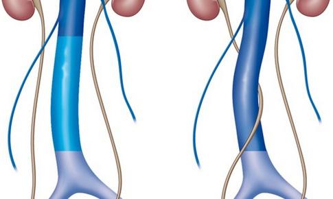 Đau tức thắt lưng: Coi chừng dị tật hệ tiết niệu!