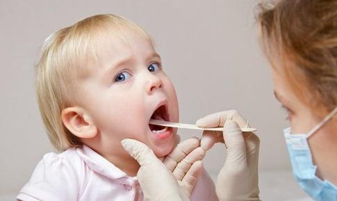 Trẻ bị viêm họng cấp nên hay không nên uống kháng sinh?