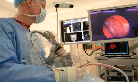 Khi nào cần phẫu thuật nội soi mũi xoang?