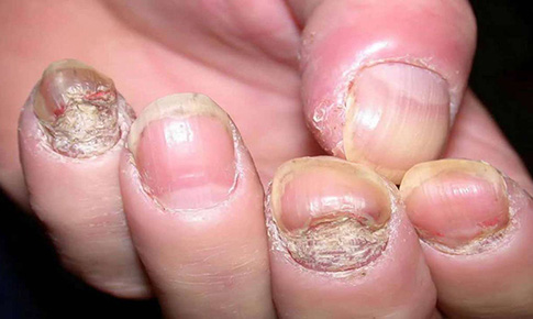 """Không nên  tự điều trị bệnh nấm da  do… """"giống nhau"""""""