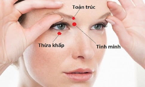 Day huyệt Tình minh trị suy giảm thị lực